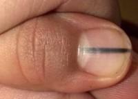 Quando la manicure ti salva la vita: il caso dell'estetista che è stata la prima sentinella a...