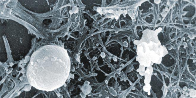 Apoptosi e necrosi, la morte cellulare