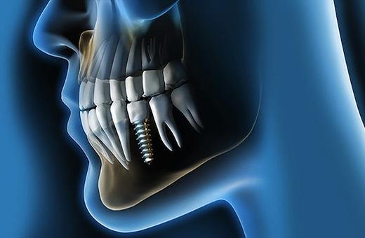 Impianto dentale: la scelta per un nuovo sorriso