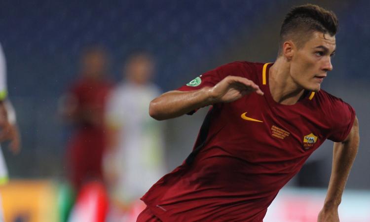 Infortunio Schik Roma: le condizioni del giocatore